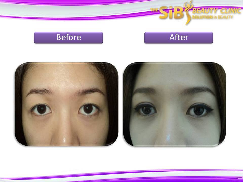 BF-Upper eyelid