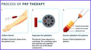 PRP3 การฉีด PRP