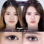 02 EYE SURGERY ศัลยกรรมตา