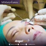 1 EYE SURGERY ศัลยกรรมตา