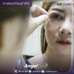 3 EYE SURGERY ศัลยกรรมตา