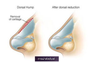 4 ศัลยกรรมเสริมจมูก Nose Surgery