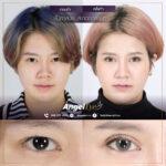 Angel eye ตาสองชั้นสะกดทุกสายตา 02