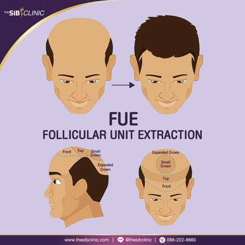 FuF3 HAIR TRANSPLANT ปลูกผม
