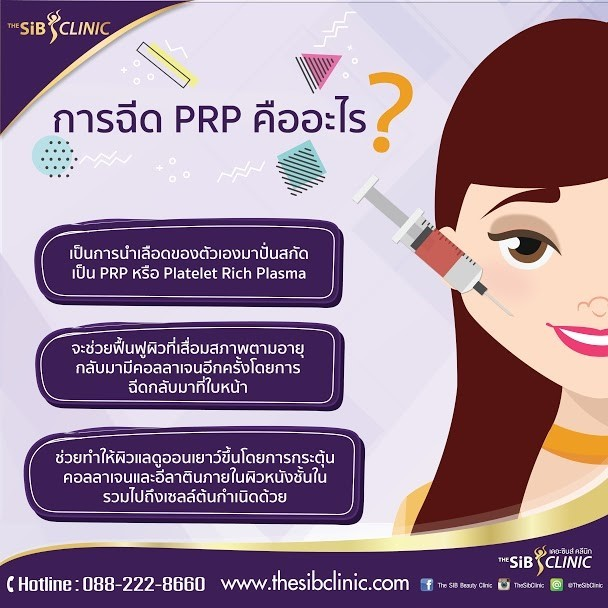 PRP1 การฉีด PRP