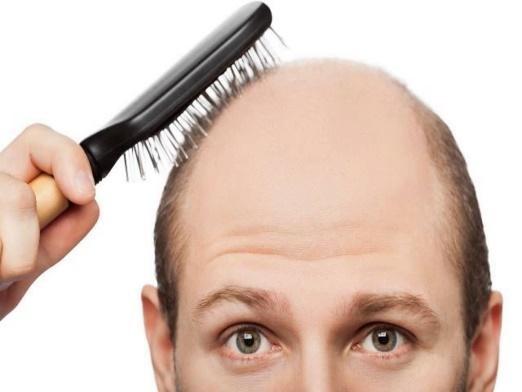 2 5 HAIR TRANSPLANT ศัลยกรรมปลูกผม