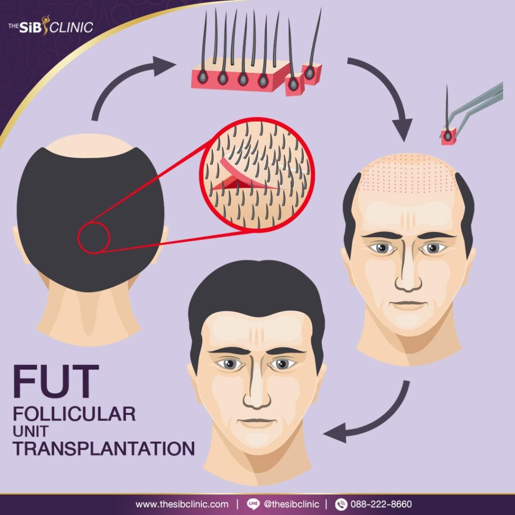 FuF2 HAIR TRANSPLANT ศัลยกรรมปลูกผม